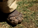 also known as mossy foot
